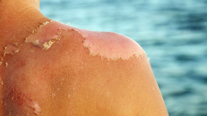 How to Get Rid of Sunburn Fast and Painlessly